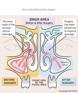 Sinus Area
